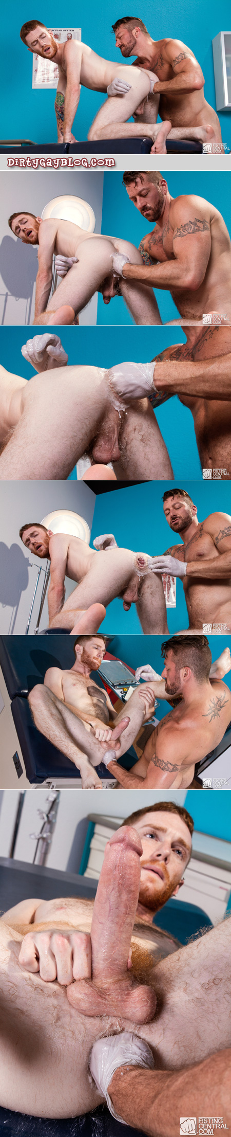 Hairy muscle Daddy fisting his young male ginger patient.